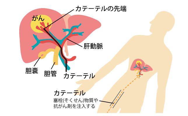 肝動脈化学塞栓療法(TACE)|教えてお医者さん